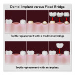 Implante dental contra el poster del puente