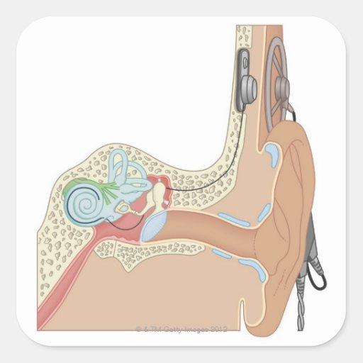 Implantes cocleares pegatina cuadrada