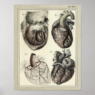 Impresión 1831 de la anatomía de las arterias del póster