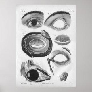 Impresión 1854 de la anatomía B/W del ojo del vint Póster