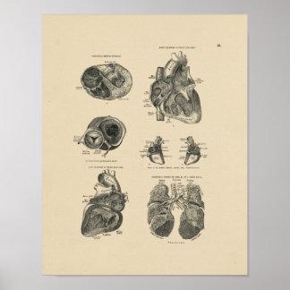 Impresión corazón-pulmón de la anatomía 1880 del póster