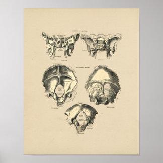 Impresión de los huesos 1880 del cráneo del