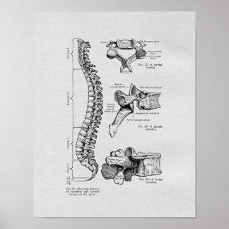 Impresión del vintage de la espina dorsal y de las impresiones