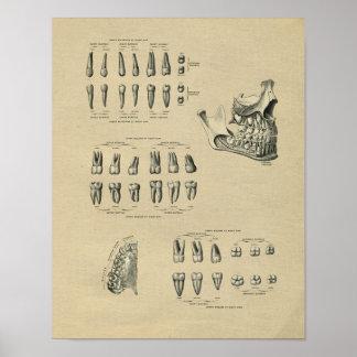 Impresión dental humana 1902 del vintage de la póster