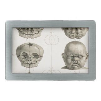 Infant Skull Deformities Weird/Conjoin Baby Belt Buckle