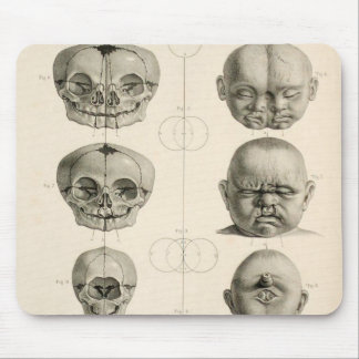 Infant Skull Deformities Weird/Conjoin Baby Mouse Pad