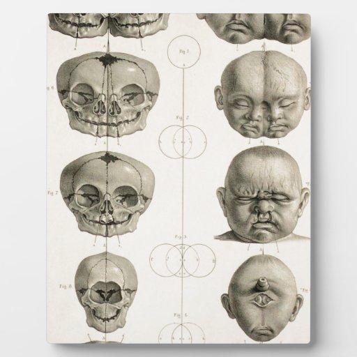 Infant Skull Deformities Weird/Conjoin Baby Plaque