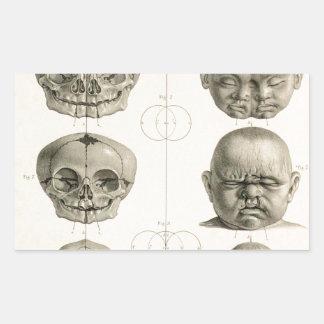 Infant Skull Deformities Weird/Conjoin Baby Rectangular Sticker