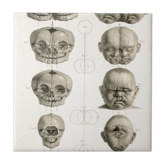 Infant Skull Deformities Weird/Conjoin Baby Tile