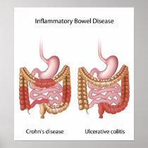 inflammatory bowel disease (ibd) poster