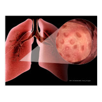 Inflammed airway during an asthma attack postcard