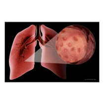 Inflammed airway during an asthma attack poster