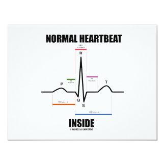 """Interior normal del latido del corazón (ECG EKG) Invitación 4.25"""" X 5.5"""""""