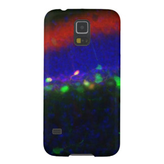 Interneuron 2 cases for galaxy s5