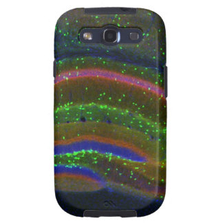 Interneuron 6 galaxy s3 covers
