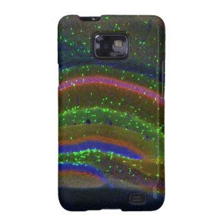 Interneuron 6 samsung galaxy s2 cover