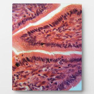 Intestine Cells under the Microscope Plaque