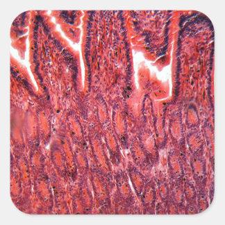 Intestine Cells under the Microscope Square Sticker