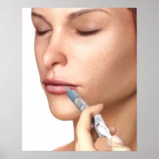 Inyecciones de Botox Póster
