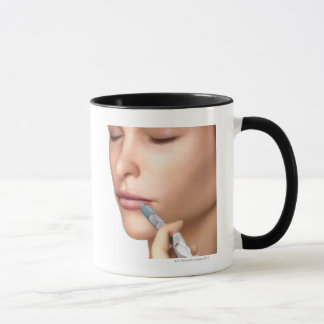Inyecciones de Botox Taza