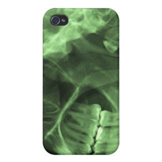 iPhone4 - xray left green Cover For iPhone 4