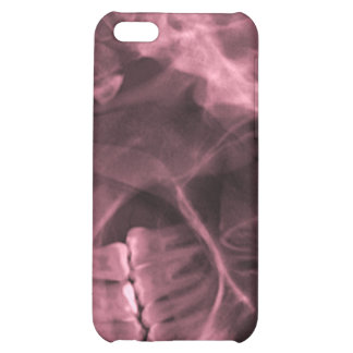 iPhone4 - xray right right handed red Case For iPhone 5C