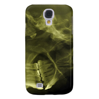 iphone 3G - Jaw X-ray (right handed Yellow) Galaxy S4 Cover