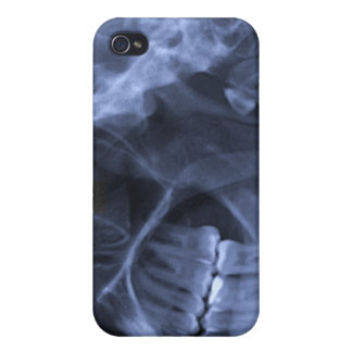 iphone 4 - Jaw X-ray (left handed) Blue iPhone 4 Cases