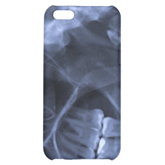iphone 4 - Jaw X-ray left handed Blue iPhone 5C Case