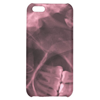 iphone 4 - Jaw X-ray left handed red iPhone 5C Cover