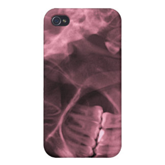 iphone 4 - Jaw X-ray left handed red iPhone 4 Case