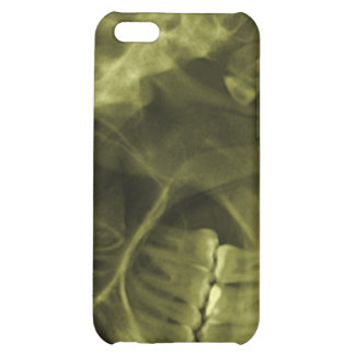 iphone 4 - Jaw X-ray left handed Yellow iPhone 5C Case