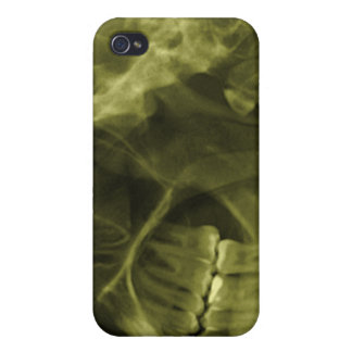 iphone 4 - Jaw X-ray left handed Yellow iPhone 4/4S Case