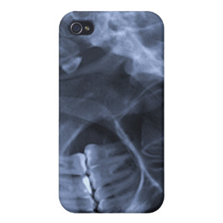 iphone 4 - Jaw X-ray right handed Blue Case For iPhone 4