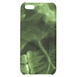 iphone 4 - Jaw X-ray right handed green iPhone 5C Cases