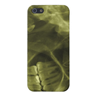 iphone 4 - Jaw X-ray (right handed) Yellow Case For iPhone SE/5/5s