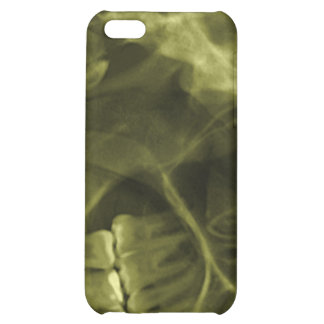 iphone 4 - Jaw X-ray (right handed) Yellow iPhone 5C Covers