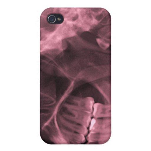 iphone 4 - Rojo (zurdo) de la radiografía del mand iPhone 4 Cobertura