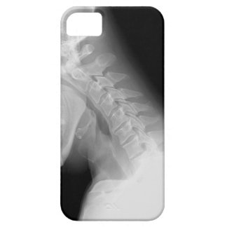 Jaw and Spine X Ray IPhone Case