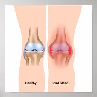 Joint bleeds in hemophilia Poster
