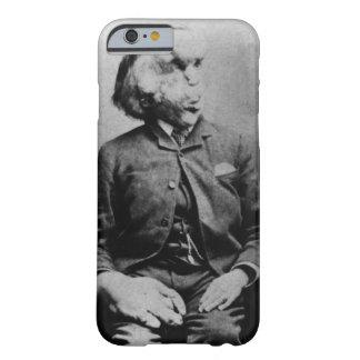 """José """"Juan"""" Merrick Elephant Man a partir de 1889 Funda Para Galaxy S4"""