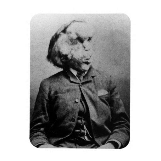 """José """"Juan"""" Merrick Elephant Man a partir de 1889 Imanes"""