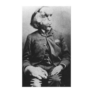 "José ""Juan"" Merrick Elephant Man a partir de 1889 Impresión En Lienzo Estirada"