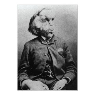 """José """"Juan"""" Merrick Elephant Man a partir de 1889 Invitación 3.5"""" X 5"""""""