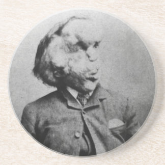 "José ""Juan"" Merrick Elephant Man a partir de 1889 Posavasos Para Bebidas"
