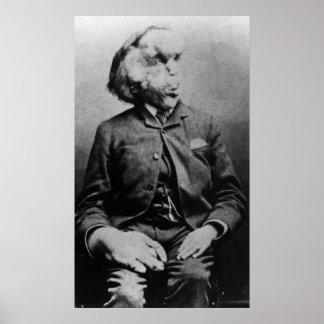 "José ""Juan"" Merrick Elephant Man a partir de 1889 Póster"