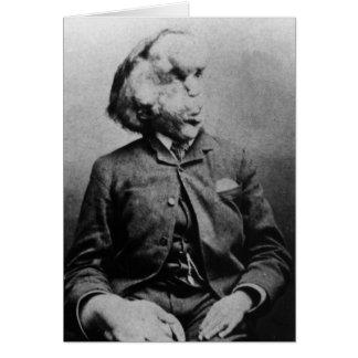 """José """"Juan"""" Merrick Elephant Man a partir de 1889 Tarjeta De Felicitación"""