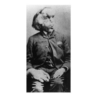 """José """"Juan"""" Merrick Elephant Man a partir de 1889 Tarjetas Con Fotos Personalizadas"""