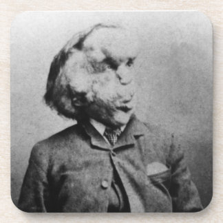 "Joseph ""John"" Merrick The Elephant Man from 1889 Beverage Coasters"