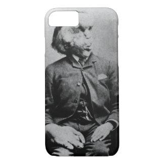 "Joseph ""John"" Merrick The Elephant Man from 1889 iPhone 7 Case"